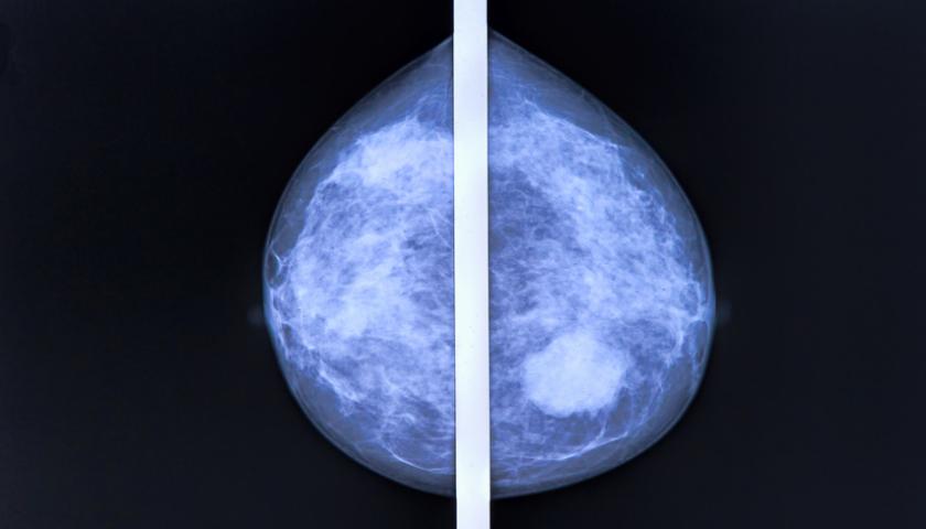 Mammografie-Screening – Debatte entfacht