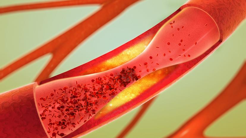 Cholesterin und Brustkebs - gibt es einen Zusammenhang?