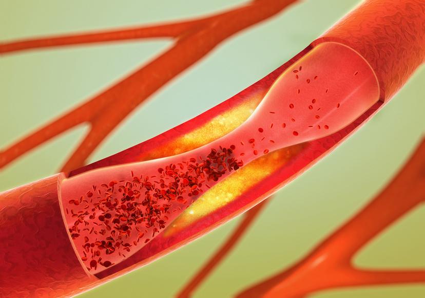 Cholesterin und Brustkrebs – fatale Liaison?