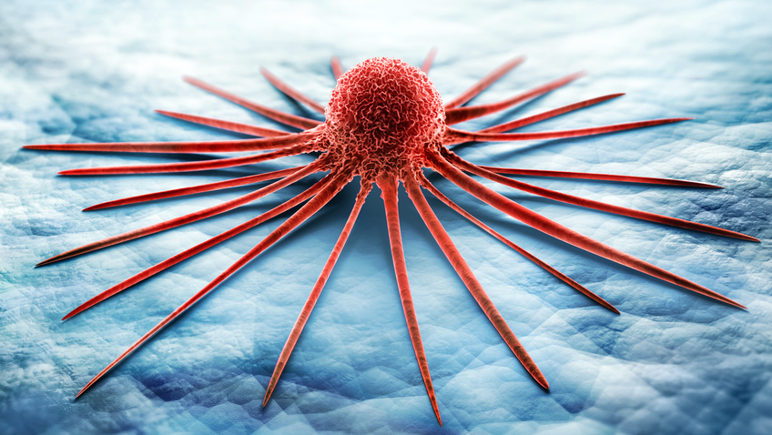 Ist eine Krebserkrankung einfach nur Pech?