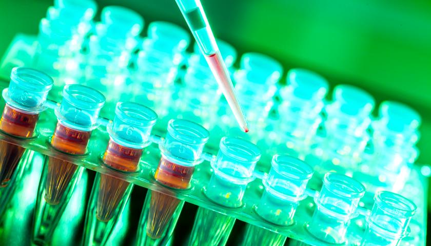 Kann ein Rinder-Virus Brustkrebs auslösen?