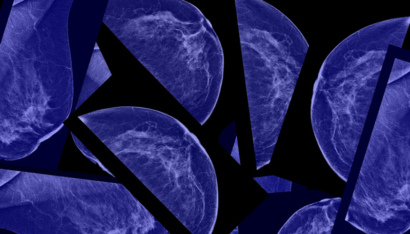 Breast IT: Brustkrebs besser erkennen dank App und Hanschuh