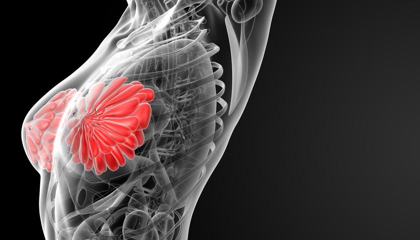 Mammografie-Screening – selten falscher Alarm