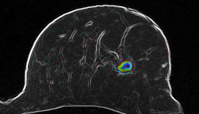 Diffusionsgewichtete MRT: Der farbige Bereich könnte Brustkrebs sein