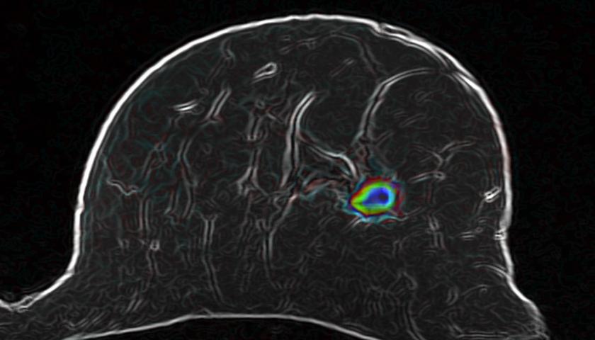 Diffusionsgewichtete MRT und schlaue Software: Der farbige Bereich könnte Brustkrebs sein