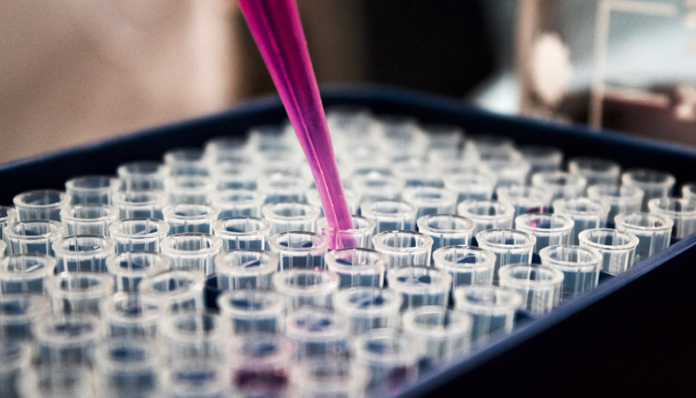 Bluttest auf Brustkrebs: Noch viele Fragen sind offen (c) Louis Reed/Unsplash