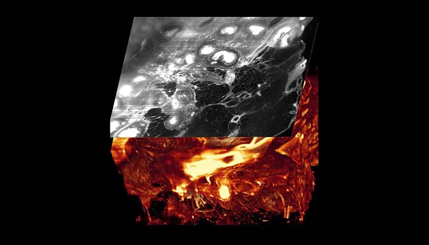 Ultramikroskopie bei Brustkrebs – Tumor in 3D